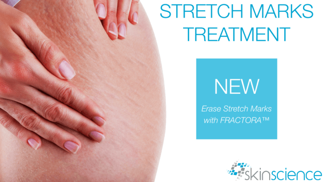 NEW PROCEDURE ~ FRACTORA Stretch Mark Treatment