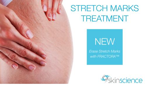 NEW PROCEDURE ~ FRACTORA Stretch Mark Treatment