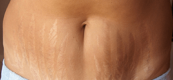 The ABCs of Stretch Marks