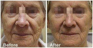 Ultimate Skin Rejuvenation Treatment blog photo