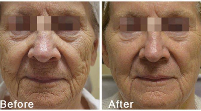FRACTORA™ ~ The Ultimate Skin Rejuvenation Treatment