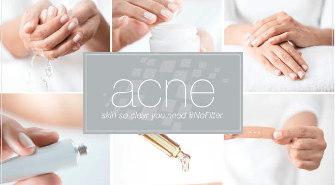 Top 10 Acne Fixes