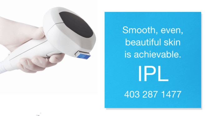 "SkinScience's Favourite ""Laser"" Treatment; IPL"