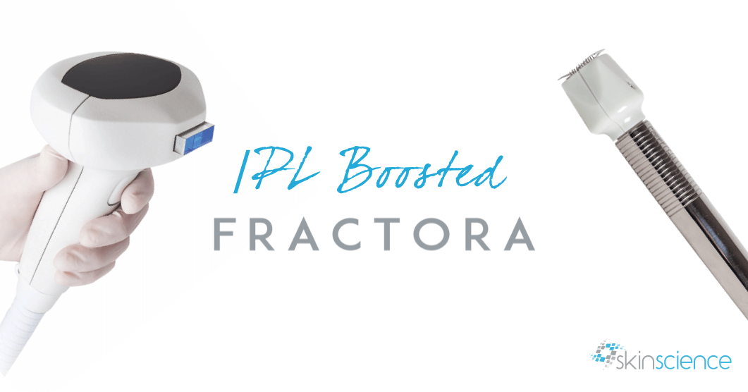 IPL Boosted Fractora; A Journal (No Details Withheld!)
