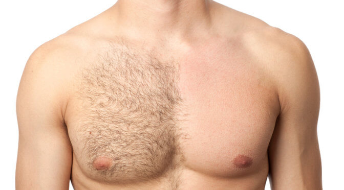 42 Reasons You Deserve Laser Hair Removal