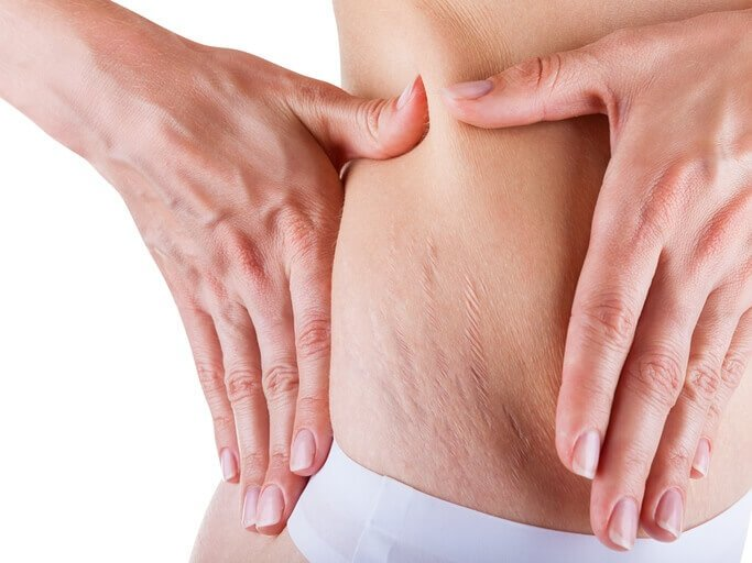 How We Tame Your Stretch Marks  – The Science Behind the Treatment