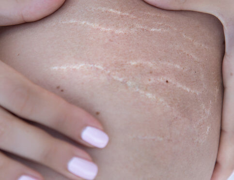 Tame Your Stretch Marks