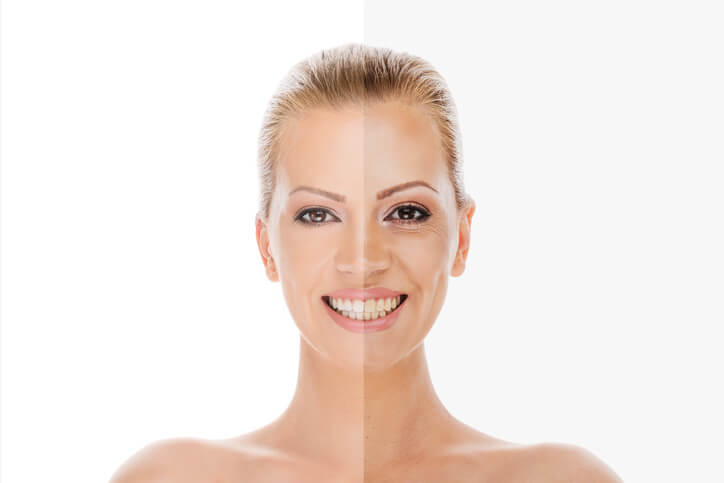 Golden Tan Turned Dull and Drab? We Can Fix It!