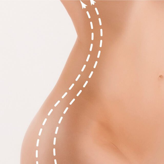 A sculpted hip area using radiofrequency