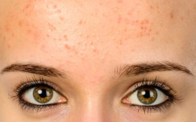 How to Know if You Have Fungal Acne ~ and How to Treat it